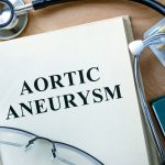 UPMC Investigates Innovative Treatment Methods for Aortic Aneurysms