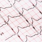 Pitt Physicians Study Patients with 2 Commonly Occurring Heart Conditions