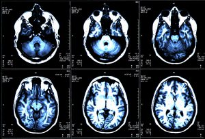 Pitt Research Provides Clues to Early Detection of Multiple Sclerosis