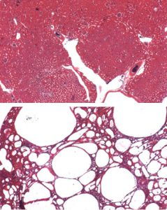 Studying the Molecular Origins of Polycystic Kidney Disease