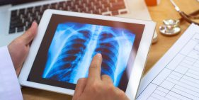 In Lung Transplantation, What is a 'Dry Run'?