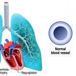 New Study Explains Gene Mutation's Impact on Pulmonary Hypertension